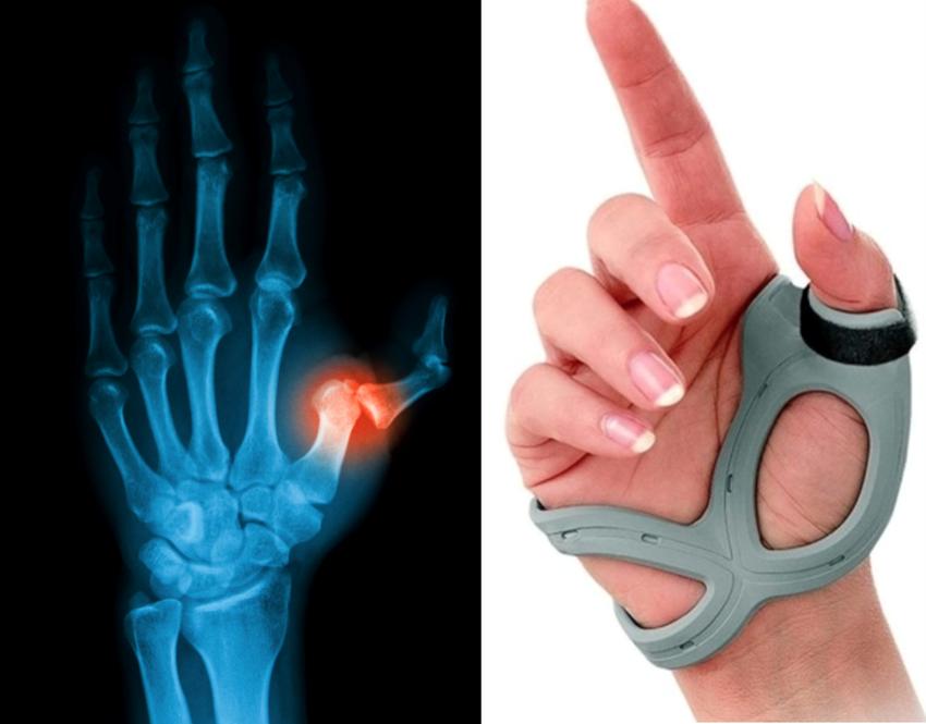 Traumas da Mão e Punho