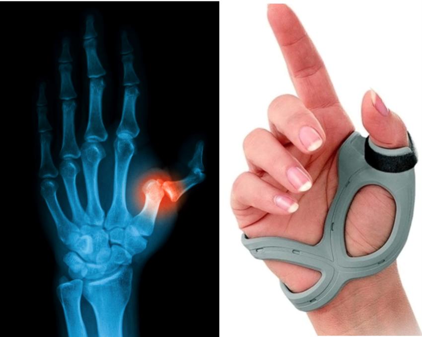 Lesões Ligamentares dos Dedos/ Luxação dos Dedos/ Lesão de Stenner